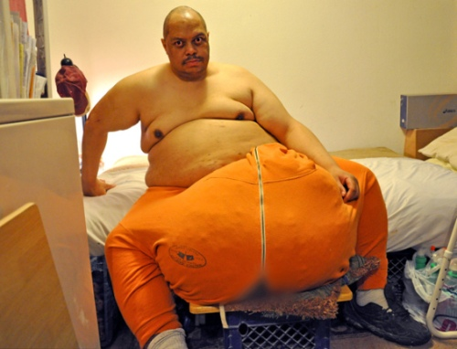 man-with-the-132-lb-scrotum